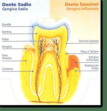 anatomia de um dente sadio