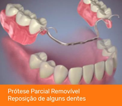 protese parcial removivel