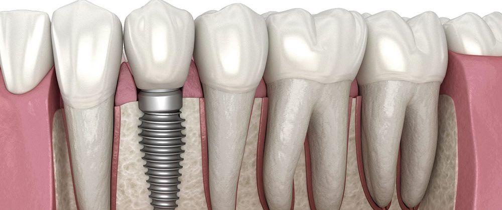 esquema de um implante dentário